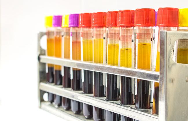 Medium volume cfDNA purification from plasma