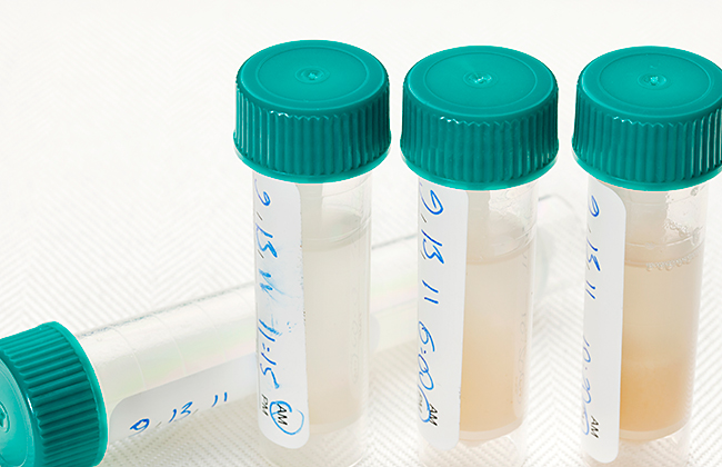 Saliva samples for nucleic acid extraction