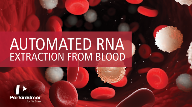 New technical note about automated RNA isolation from blood