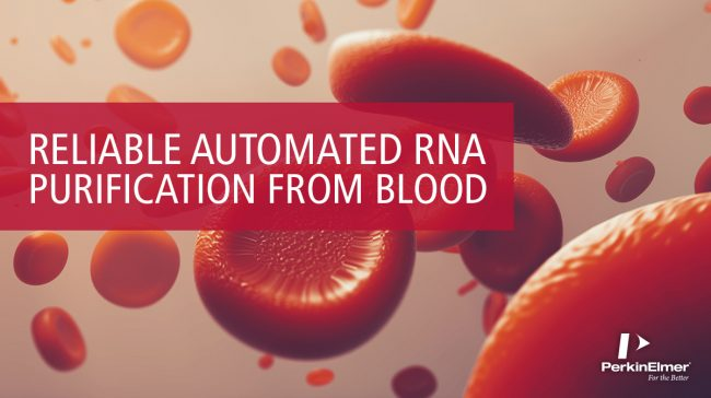 New technical note about automated RNA isolation from Paxgene tubes